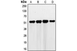Image no. 1 for anti-GTPase Activating Protein (SH3 Domain) Binding Protein 2 (G3BP2) (C-Term) antibody (ABIN2704811)