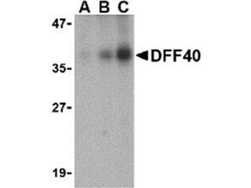 Western Blotting (WB) image for anti-DFFB antibody (DNA Fragmentation Factor, 40kDa, beta Polypeptide (Caspase-Activated DNase)) (Intermediate Domain) (ABIN499740)
