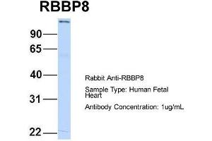 anti-Retinoblastoma Binding Protein 8 (RBBP8) (C-Term) antibody (3)