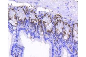 Immunohistochemistry (Paraffin-embedded Sections) (IHC (p)) image for anti-SRY (Sex Determining Region Y)-Box 9 (SOX9) (AA 150-300) antibody (ABIN5950738)