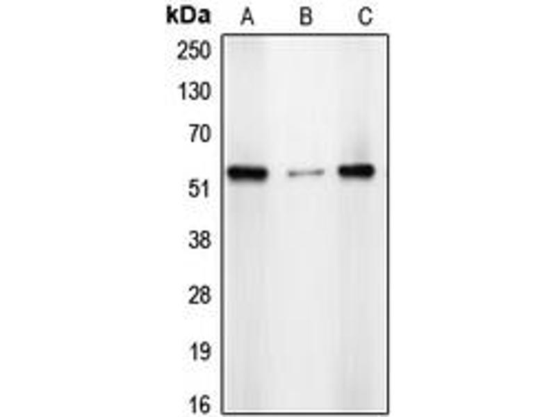 Image no. 1 for anti-Chromodomain Protein, Y-Like 2 (CDYL2) (N-Term) antibody (ABIN2707421)