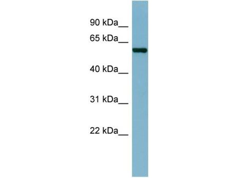 Western Blotting (WB) image for anti-CAP, Adenylate Cyclase-Associated Protein 1 (Yeast) (CAP1) (N-Term) antibody (ABIN2783322)