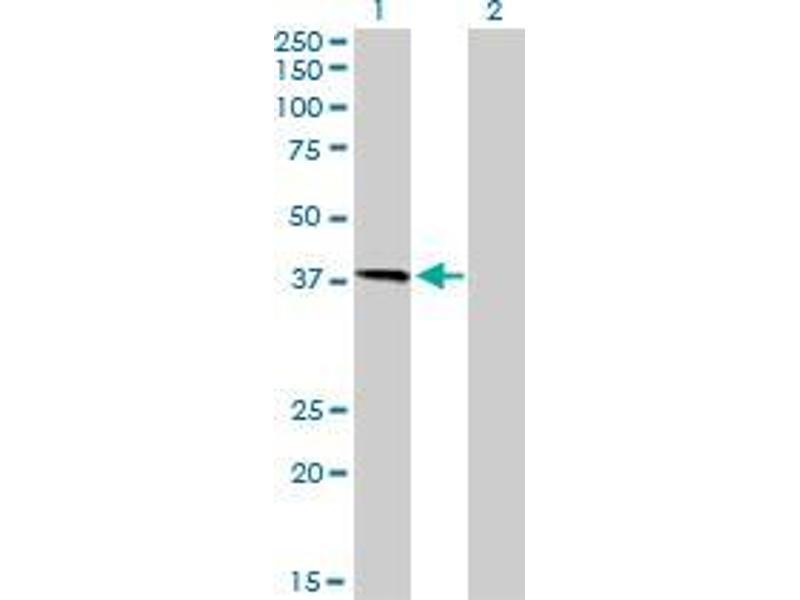 Immunohistochemistry (IHC) image for anti-HFE antibody (Hemochromatosis) (AA 115-206) (ABIN395159)