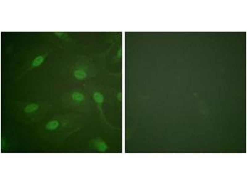 Immunofluorescence (IF) image for anti-CHEK1 antibody (Checkpoint Kinase 1) (pSer301) (ABIN1531555)