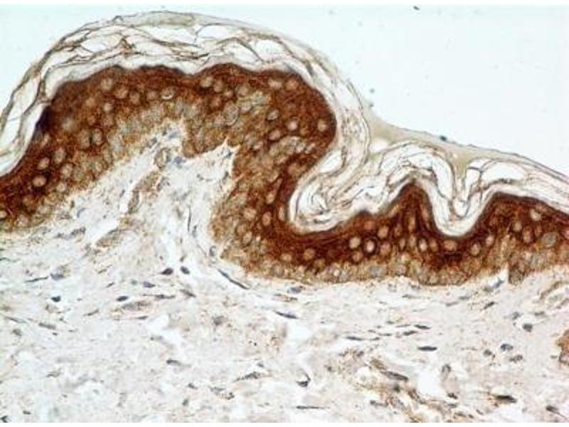 Immunohistochemistry (Paraffin-embedded Sections) (IHC (p)) image for anti-FGFR1 antibody (Fibroblast Growth Factor Receptor 1) (Isoform beta) (ABIN250616)