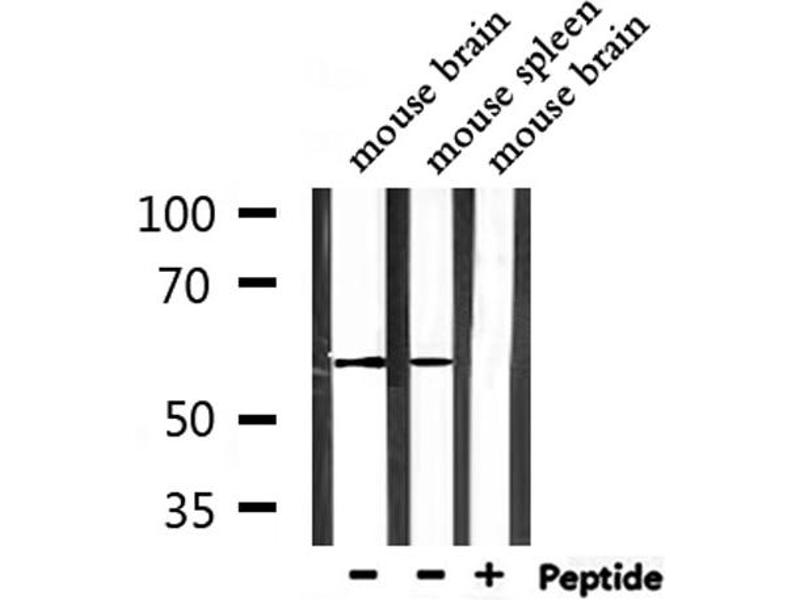 Western Blotting (WB) image for anti-Signal Transducing Adaptor Molecule (SH3 Domain and ITAM Motif) 2 (STAM2) antibody (ABIN6265306)