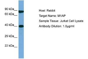 Image no. 1 for anti-Meiosis 1 Associated Protein (M1AP) (Middle Region) antibody (ABIN2785031)