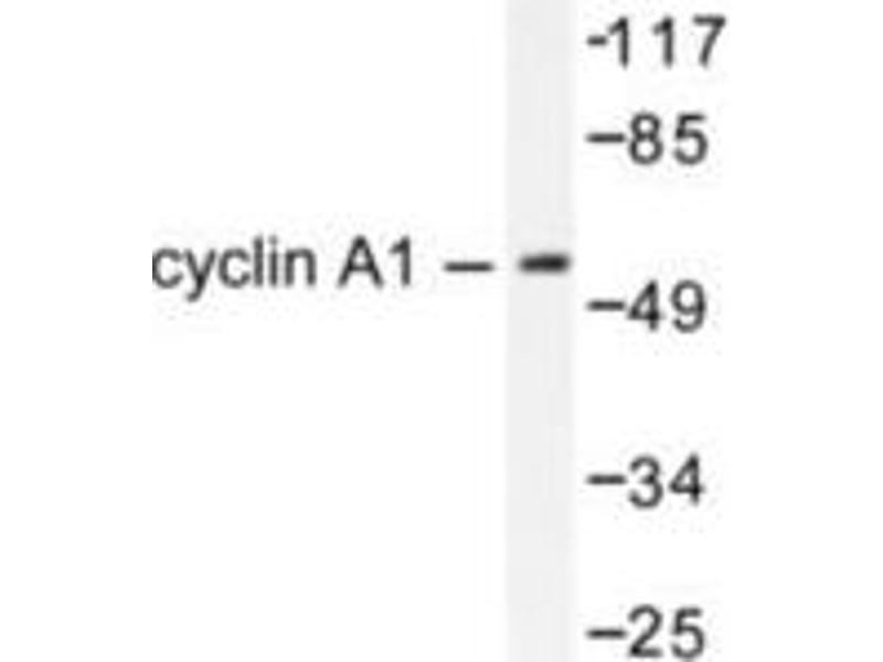 image for anti-Cyclin A1 (CCNA1) antibody (ABIN265378)