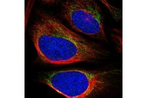 Image no. 1 for anti-Zinc Finger Protein 467 (ZNF467) antibody (ABIN5591369)