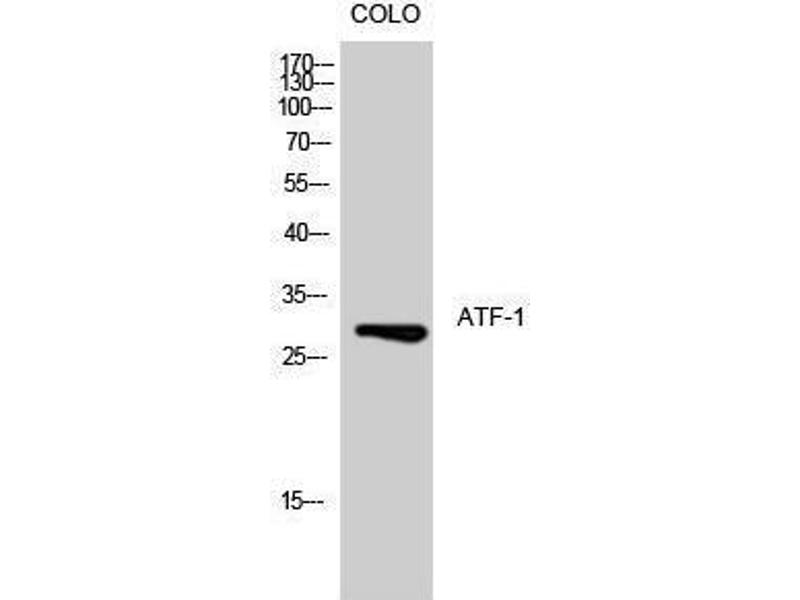 Western Blotting (WB) image for anti-Activating Transcription Factor 1 (AFT1) (Ser157) antibody (ABIN3183409)