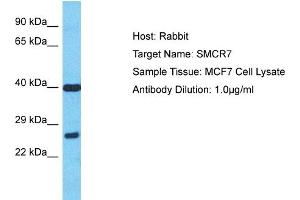 Image no. 1 for anti-Smith-Magenis Syndrome Chromosome Region, Candidate 7 (SMCR7) (N-Term) antibody (ABIN2774579)
