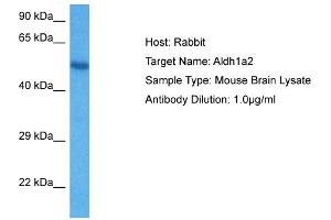 Image no. 1 for anti-Aldehyde Dehydrogenase 1 Family, Member A2 (ALDH1A2) (C-Term) antibody (ABIN2788208)