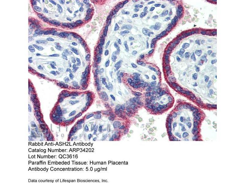 Immunohistochemistry (IHC) image for anti-Ash2 (Absent, Small, Or Homeotic)-Like (Drosophila) (ASH2L) (Middle Region) antibody (ABIN2778325)