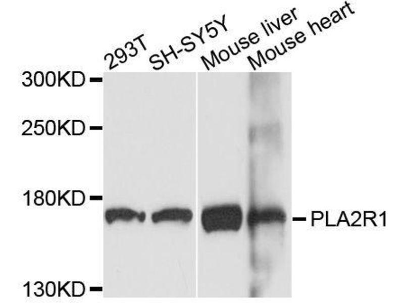 Western Blotting (WB) image for anti-phospholipase A2 Receptor 1, 180kDa (PLA2R1) antibody (ABIN6145738)