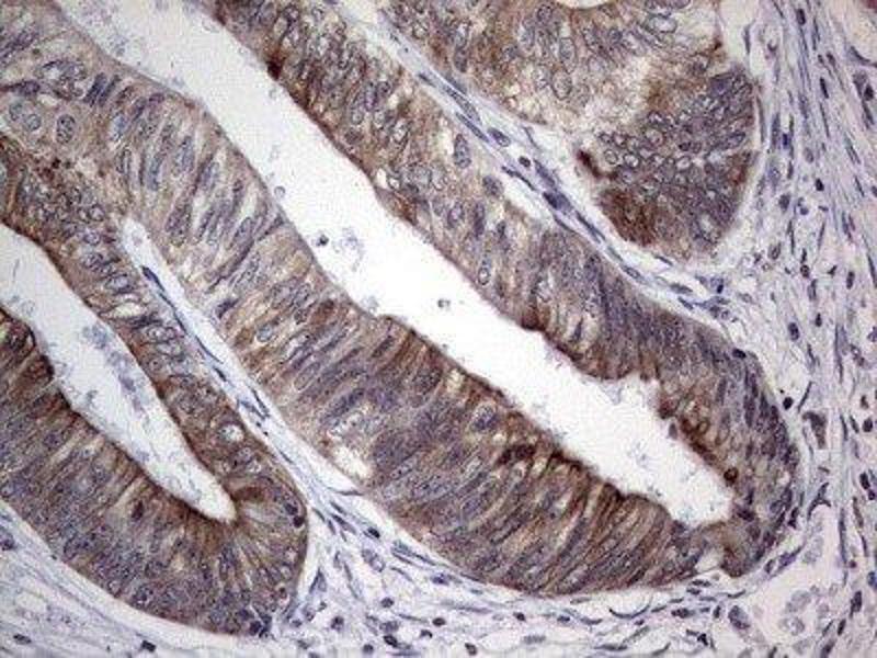Immunohistochemistry (IHC) image for anti-DBNL antibody (Drebrin-Like) (ABIN4317500)