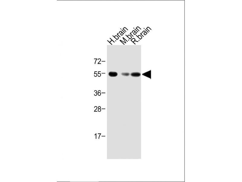 Western Blotting (WB) image for anti-Activin A Receptor, Type IB (ACVR1B) (AA 39-68), (N-Term) antibody (ABIN392231)