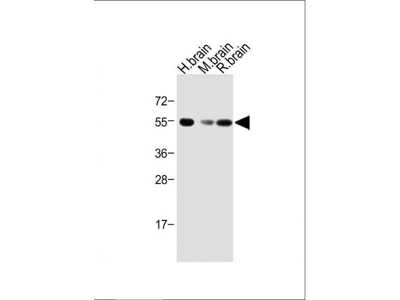 Western Blotting (WB) image for anti-Activin A Receptor, Type IB (ACVR1B) (AA 39-68), (N-Term) antibody (ABIN392231)