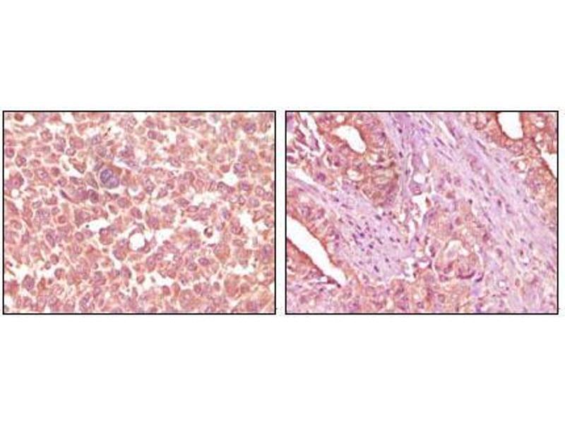 Immunohistochemistry (IHC) image for anti-EPH Receptor A2 antibody (EPHA2) (ABIN1724651)