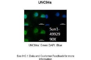 Image no. 7 for anti-Sad1 and UNC84 Domain Containing 1 (SUN1) (N-Term) antibody (ABIN2783971)