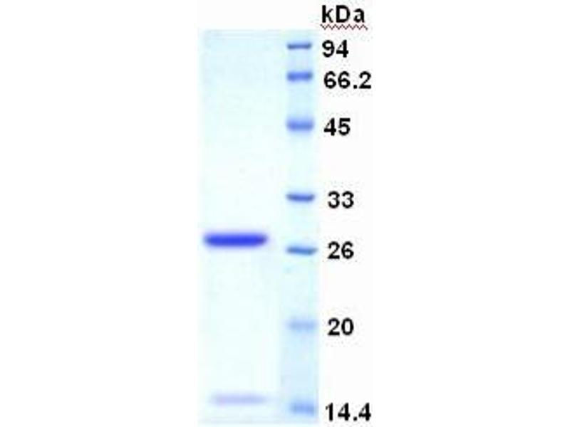 Antigen Identified By Monoclonal Antibody Ki-67 (MKI67) ELISA Kit (3)
