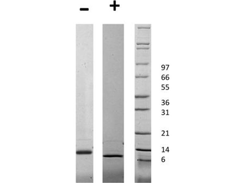 Image no. 1 for Connective Tissue Growth Factor (CTGF) protein (ABIN6699726)