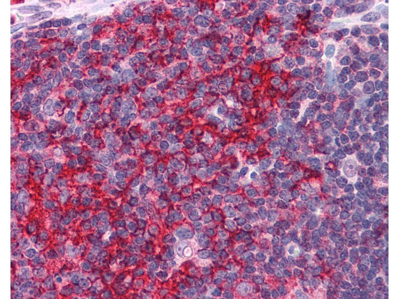 Immunohistochemistry (IHC) image for anti-EF-Hand Domain Family, Member D2 (EFHD2) (N-Term) antibody (ABIN604726)