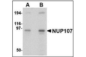 Image no. 2 for anti-Nucleoporin 107kDa (NUP107) (Center) antibody (ABIN783157)