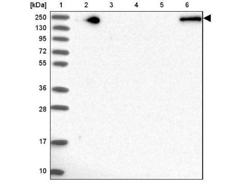 Western Blotting (WB) image for anti-alpha-2-Macroglobulin-Like 1 (A2ML1) antibody (ABIN4279702)