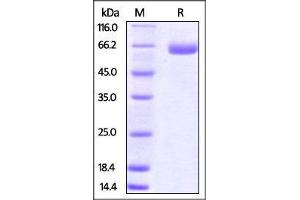 Image no. 1 for CD276 Molecule (CD276) (AA 29-244) protein (Fc Tag) (ABIN4949156)