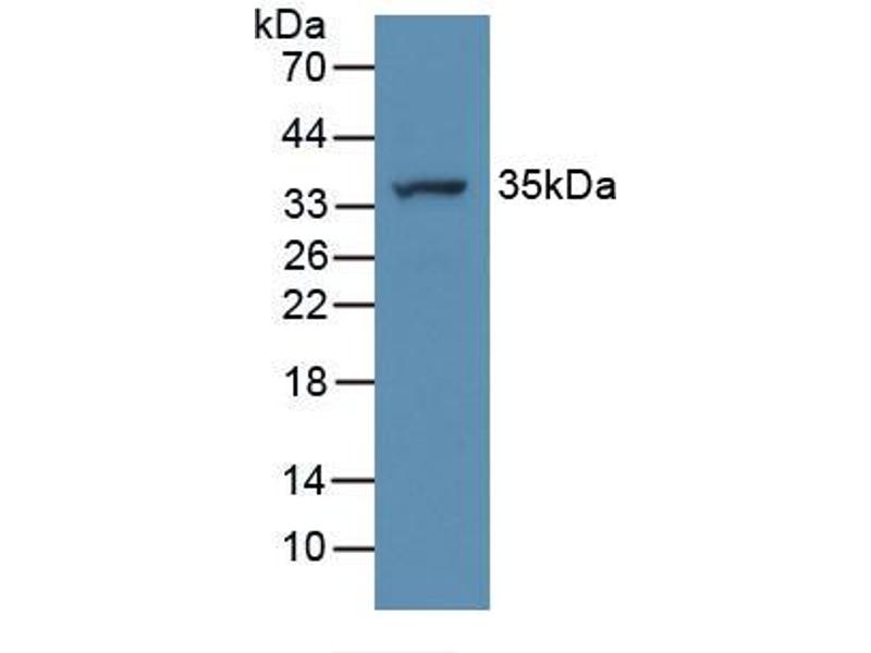 Western Blotting (WB) image for anti-ATPase, H+ Transporting, Lysosomal Accessory Protein 2 (ATP6AP2) (AA 18-302) antibody (ABIN3203346)