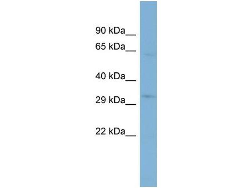 Western Blotting (WB) image for anti-Transmembrane Protein 110 (TMEM110) (N-Term) antibody (ABIN503794)