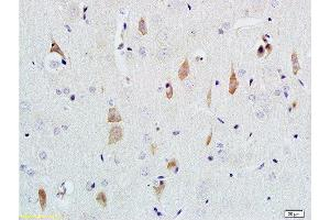 Immunohistochemistry (Paraffin-embedded Sections) (IHC (p)) image for anti-Nerve Growth Factor beta (NGFB) (AA 150-200) antibody (ABIN724430)