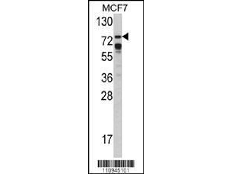 Western Blotting (WB) image for anti-SNRPE antibody (Small Nuclear Ribonucleoprotein Polypeptide E) (AA 580-609) (ABIN392253)