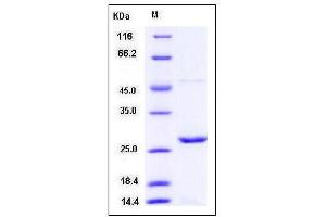 Image no. 1 for Peroxiredoxin 1 (PRDX1) (AA 1-199) protein (His tag) (ABIN2007961)