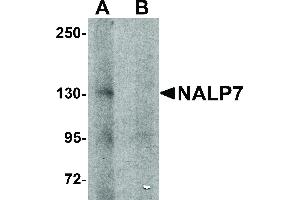 Image no. 1 for anti-NLR Family, Pyrin Domain Containing 7 (NLRP7) (N-Term) antibody (ABIN6655444)
