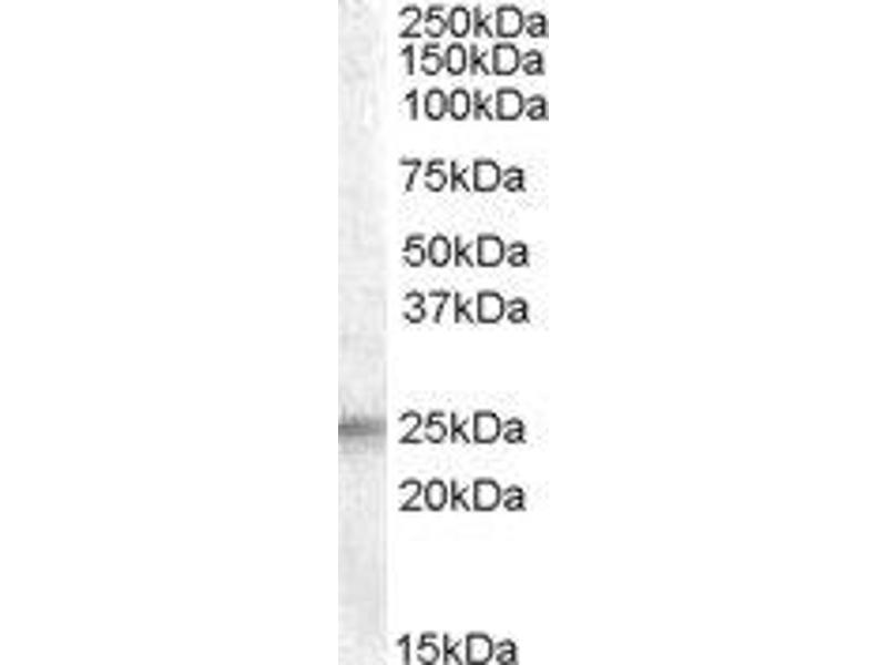 Western Blotting (WB) image for anti-Insulin-Like Growth Factor Binding Protein 6 (IGFBP6) (Internal Region) antibody (ABIN2563362)