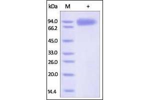 SDS-PAGE (SDS) image for Gp120 (AA 36-511) (Active) protein (His tag) (ABIN2181174)