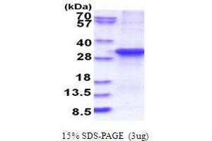Image no. 1 for Ankyrin Repeat and SOCS Box Containing 13 (ASB13) (AA 1-278) protein (His tag) (ABIN5853839)