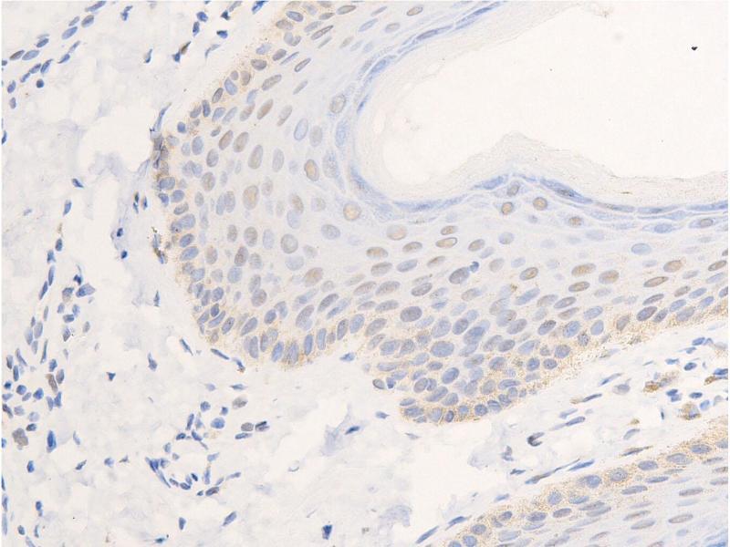 Immunohistochemistry (IHC) image for anti-Epidermal Growth Factor Receptor (EGFR) (pSer1026) antibody (ABIN6254923)