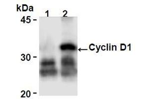 Image no. 2 for anti-Cyclin D1 (CCND1) antibody (ABIN1106871)