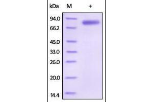 Image no. 1 for Interleukin 12 beta (IL12B) (AA 23-328) protein (Fc Tag) (ABIN2181332)