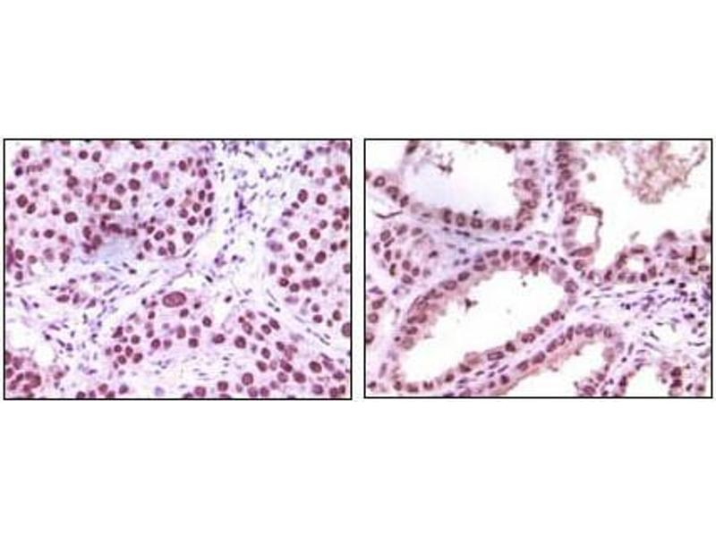 Immunohistochemistry (IHC) image for anti-Lysine (K)-Specific Demethylase 1A (KDM1A) antibody (ABIN1105388)