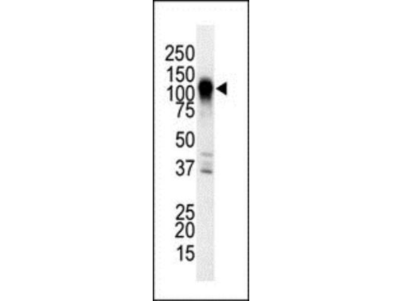 Western Blotting (WB) image for anti-Mitogen-Activated Protein Kinase Kinase Kinase 6 (MAP3K6) (C-Term) antibody (ABIN4332654)