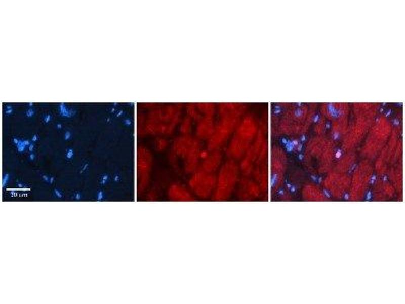 Immunohistochemistry (IHC) image for anti-SIX Homeobox 1 (SIX1) antibody (ABIN4894657)