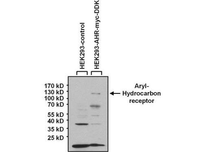 Western Blotting (WB) image for anti-Aryl Hydrocarbon Receptor (AHR) antibody (ABIN152674)