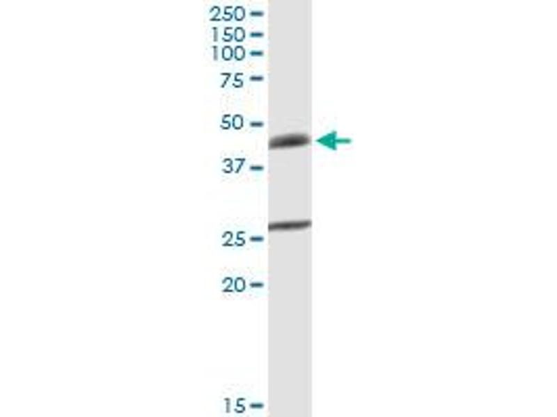 Western Blotting (WB) image for anti-UDP-Gal:betaGlcNAc beta 1,4- Galactosyltransferase, Polypeptide 3 (B4GALT3) (AA 1-393), (full length) antibody (ABIN948724)