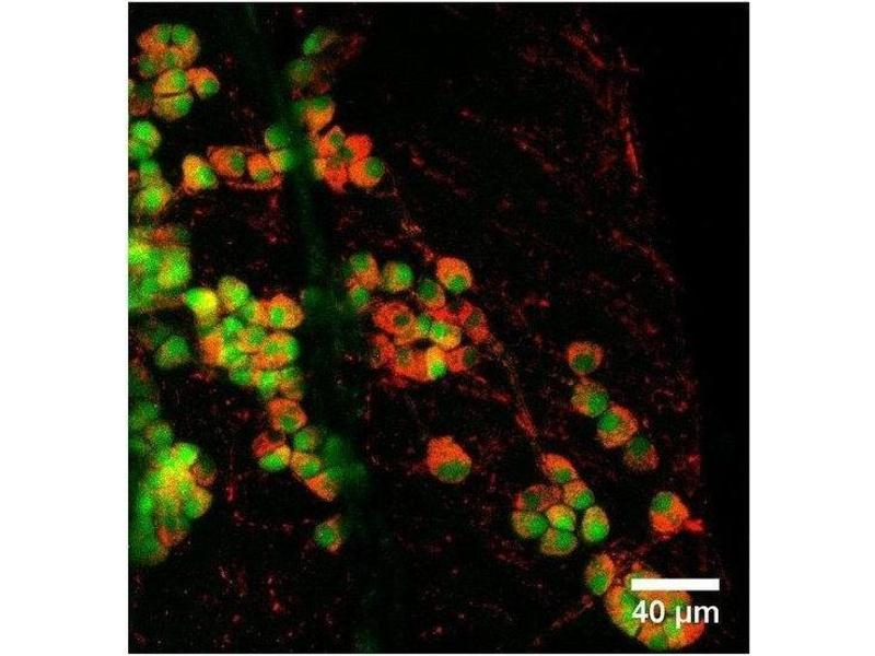 Immunofluorescence (IF) image for anti-phosphodiesterase 2A, CGMP-Stimulated (PDE2A) antibody (ABIN1040308)