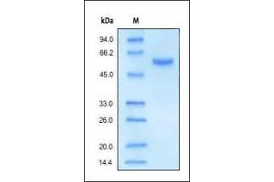 SDS-PAGE (SDS) image for Carboxypeptidase E (CPE) (AA 28-476) (Active) protein (His tag) (ABIN2180680)