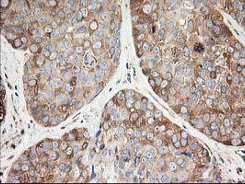 Immunohistochemistry (IHC) image for anti-TUBB5 antibody (Tubulin, Beta, 5) (ABIN2454747)