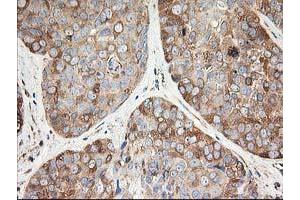 Immunohistochemistry (IHC) image for anti-Tubulin, Beta, 5 (TUBB5) antibody (ABIN2454747)